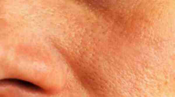 Oily skin remedies and what cosmetic companies don't want to tell you