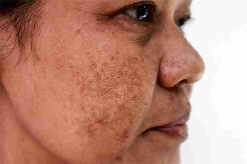 Pigmentation, Melasma, Chloasma, Brown Spots, Hyperpigmentation