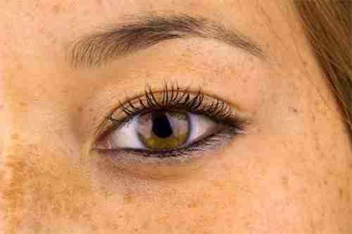 Pigmentation, Melasma, Chloasma, Hyperpigmentation, Freckles, Brown Spots